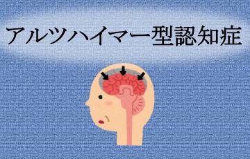 アルツハイマー型認知症とは?まず押さえたい基礎知識を網羅|認知症のコラム